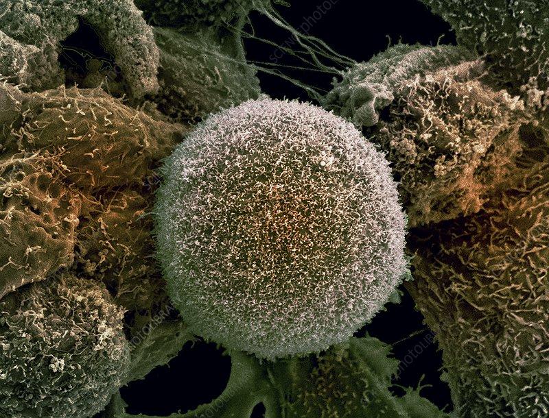 Prostate cancer cells, SEM