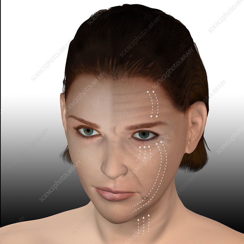 Skin aging, illustration