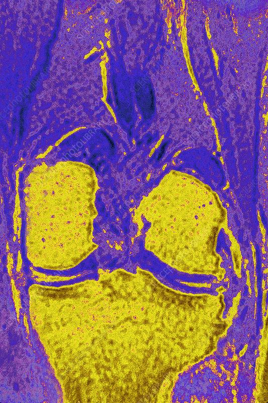 Healthy knee, MRI