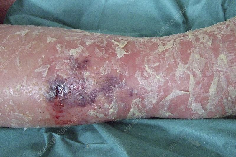 Leg with necrotizing fasciitis