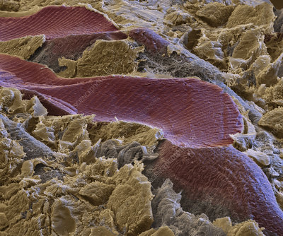 Striated muscle tissue, SEM