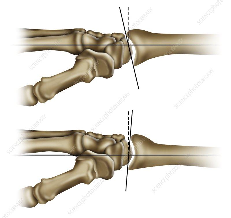 Wrist joint movements, illustration