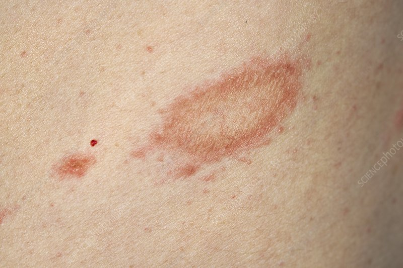 Herald patch in pityriasis rosea - Stock Image - C046/3451 - Science Photo Library