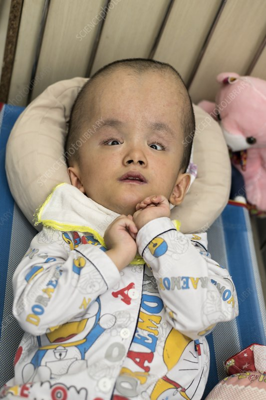 Child with hydrocephalus