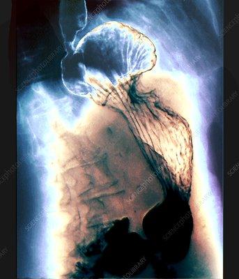 Diaphragmatic hernia, X-ray