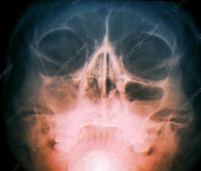Sinusitis, X-ray