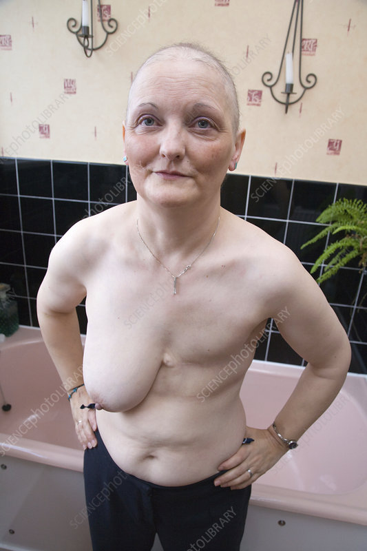Woman who has had a mastectomy and chemotherapy - Stock