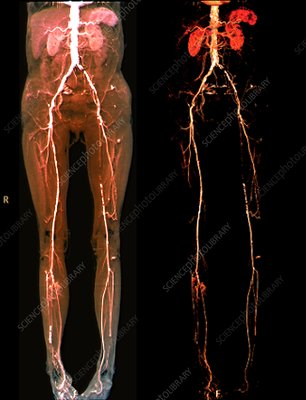 Vascular disease, CT scans