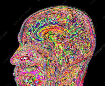 Human head and brain, 3D MRI scan