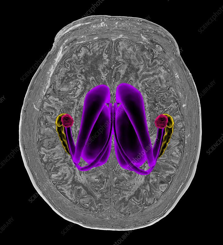 Human brain and limbic system, MRI-based illustration