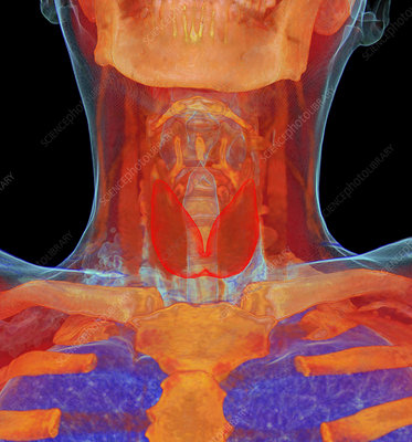 Human neck anatomy, 3D CT scan