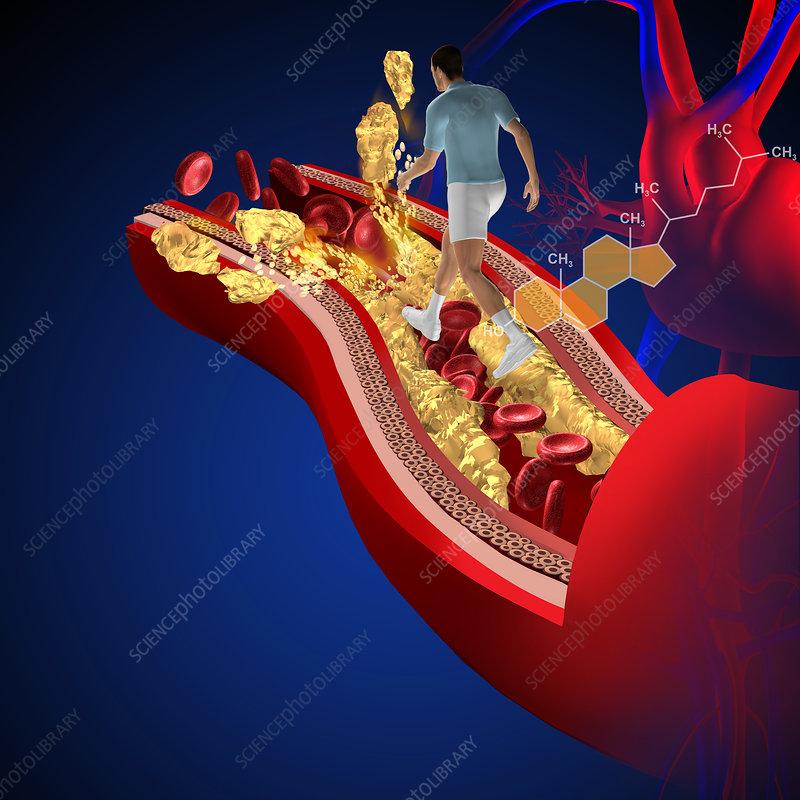 Cholesterol, illustration