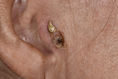 Human Senses Ear Hearing Stock Photos and Pictures - Science