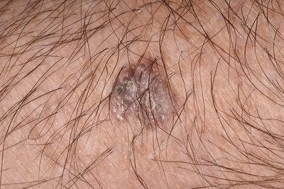 Basal cell papilloma. Basal cell papilloma, Gastric cancer d2 lymphadenectomy