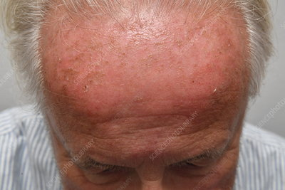 Skin Cancer On Forehead Keyword Search Science Photo Library