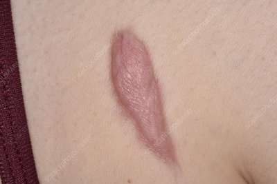 Keloid Scar Keyword Search Science Photo Library
