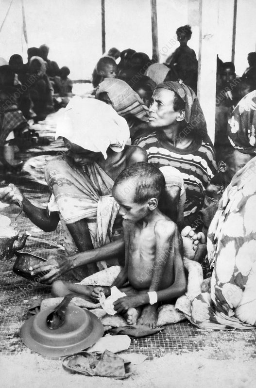 Malnourished child in Somalia, 1990s