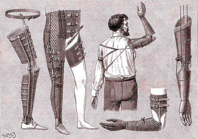 Prostheses by French surgeon Ambroise Pare, 16th century