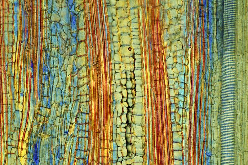Banana stalk, light micrograph