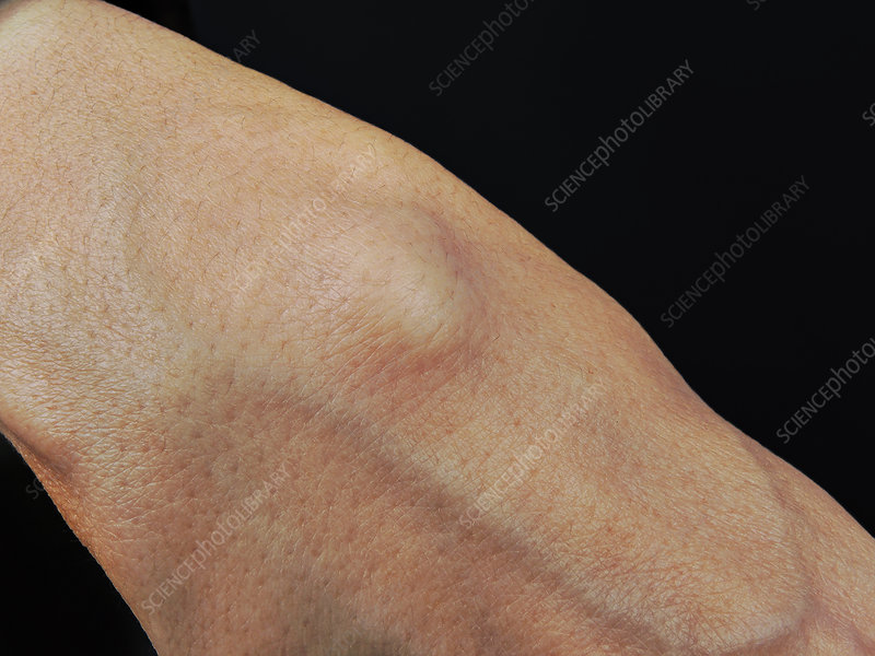 Arthrosynovial cyst of the wrist
