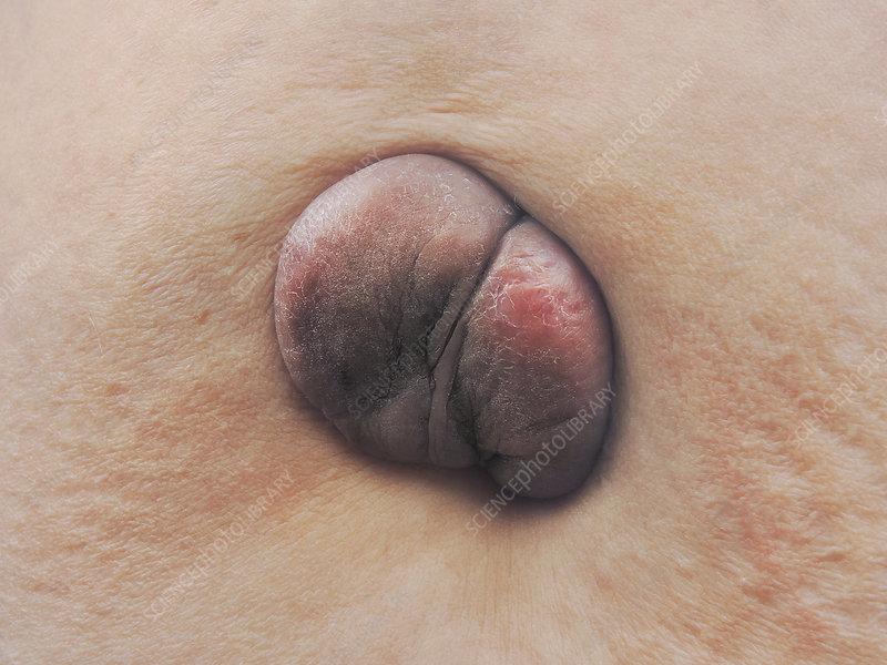 Umbilical keloid