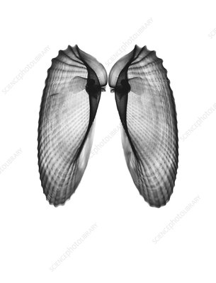 Angel wing clam shells, X-ray