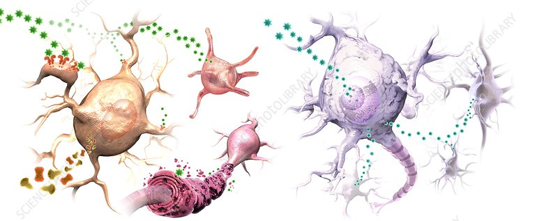 HERV and autoimmune neural diseases, illustration