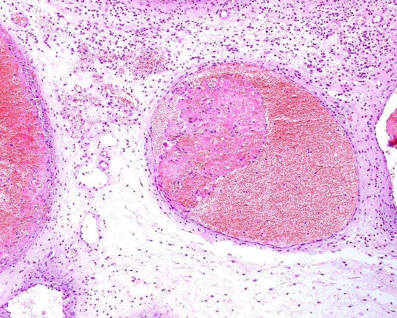 Masson's tumour, light micrograph