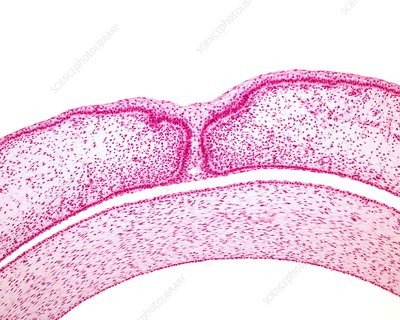 Embryonic fused eyelids, light micrograph
