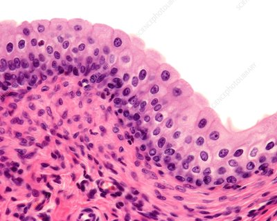 Urinary bladder transitional epithelium, light micrograph