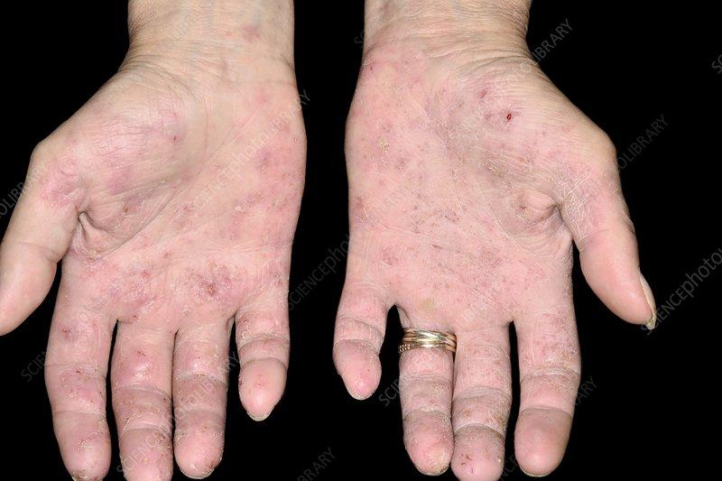 Latex allergy skin rash