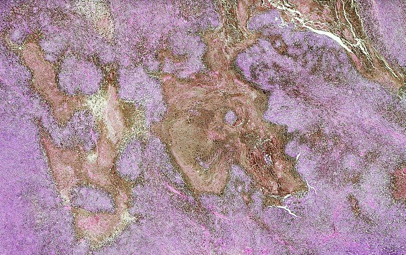 Malignant melanoma, light micrograph