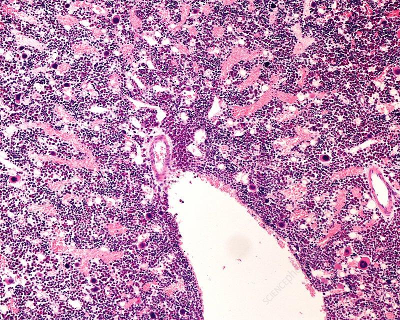 Bone marrow, light micrograph
