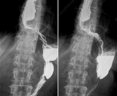 Cancer of the oesophagus, X-rays