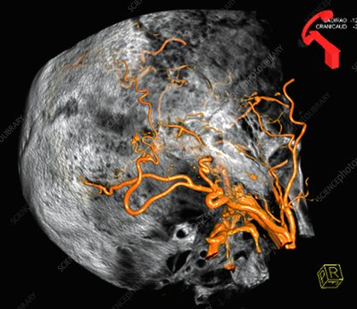 Arterial malformation, 3D CT scan