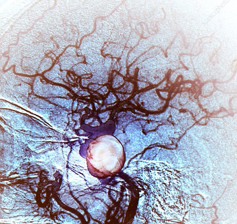 Brain aneurysm, angiogram