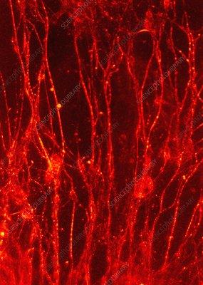 Normal cerebral cortex, light micrograph
