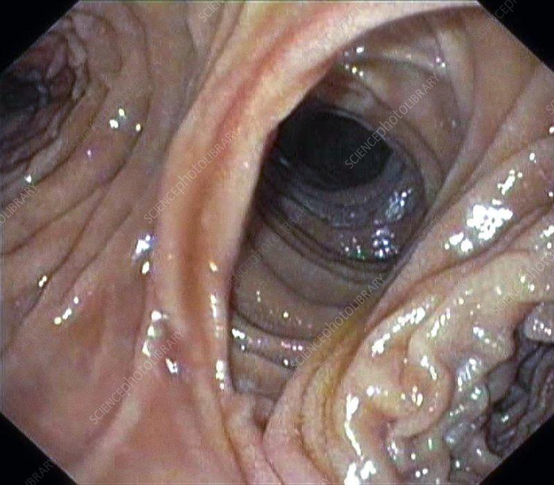 Small intestine anastamosis, endoscopy image