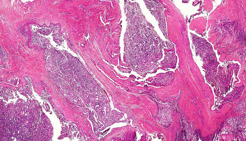 Human follicular thyroid carcinoma, light micrograph
