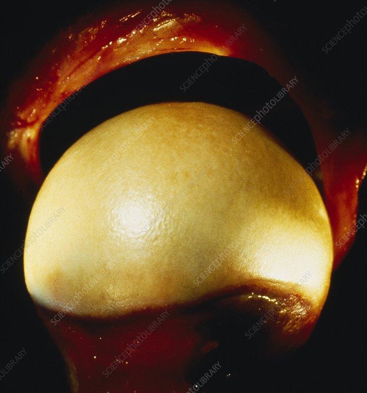 Healthy humeral head