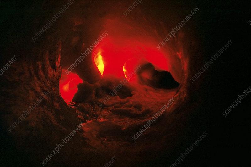 Calcified aorta, endoscope view