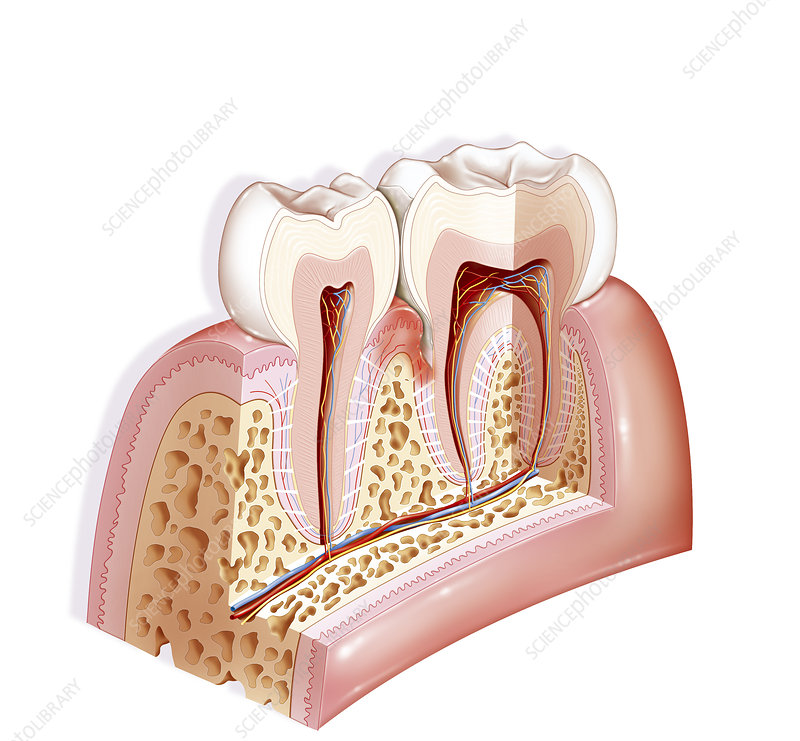 Illustration of periodontal pocket