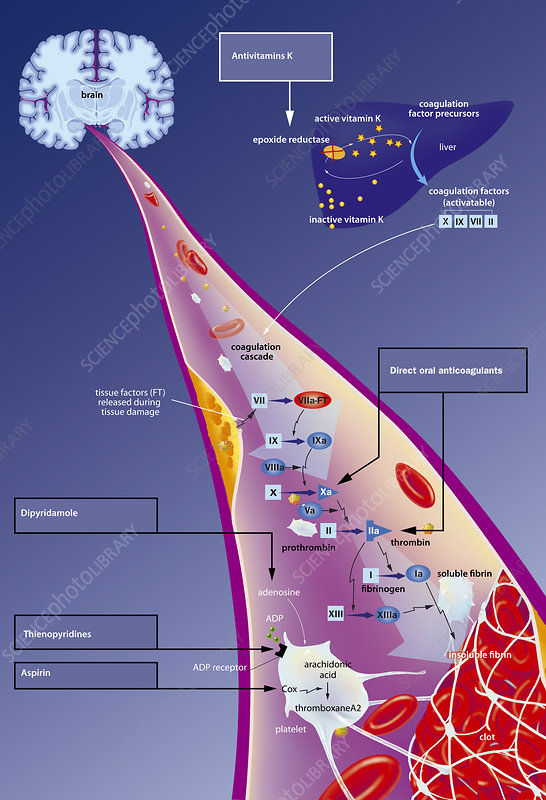 Blood clotting and it role in causing strokes