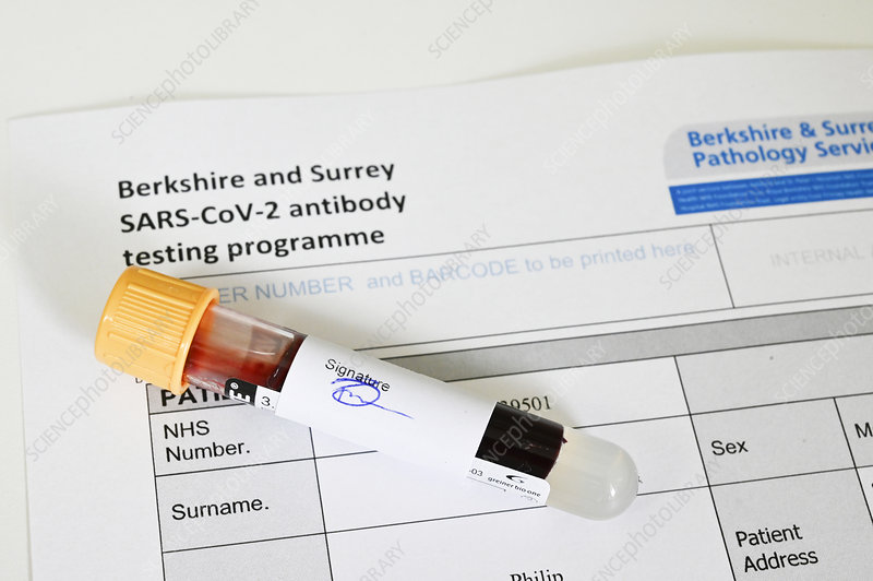 Blood sample for Covid-19 antibody test