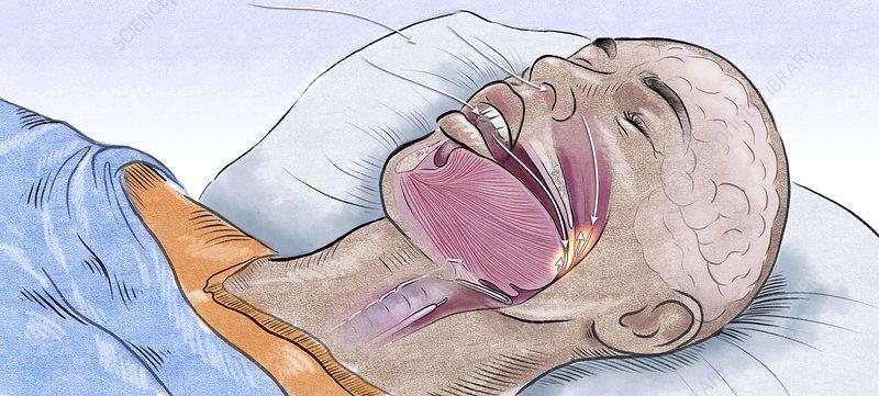 Sleep apnoea, illustration