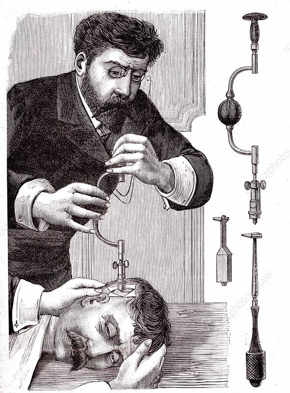 19th Century trepanning treatment, illustration