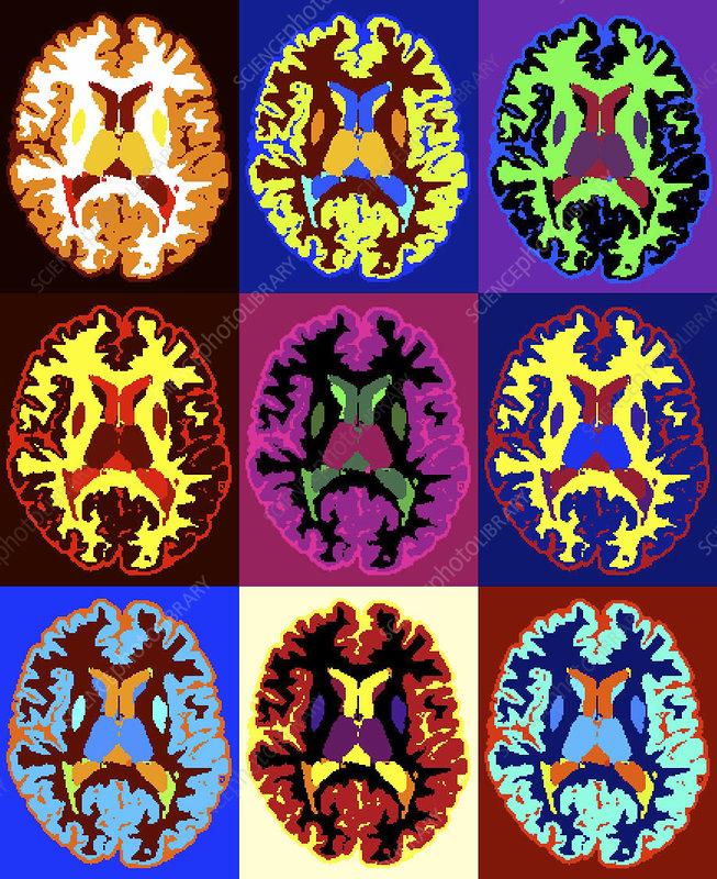 Multiple sclerosis, MRI scans