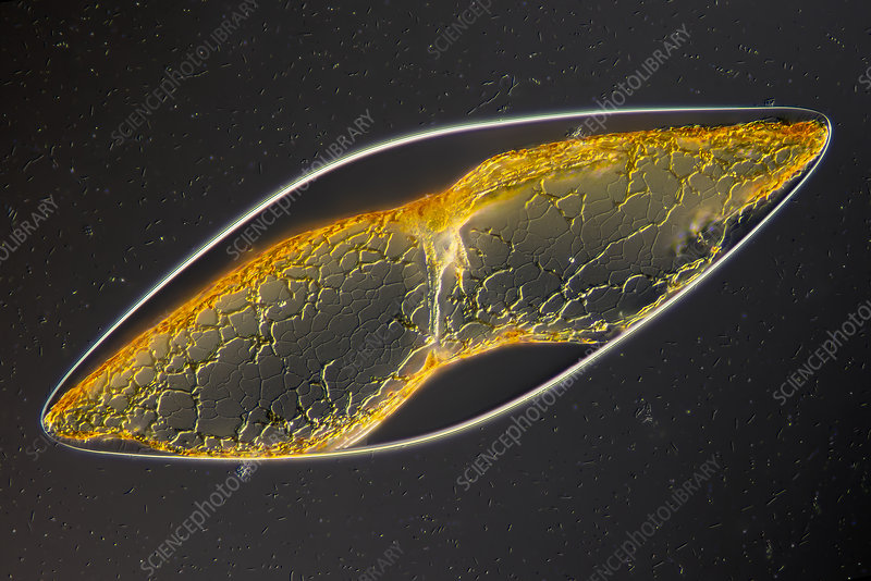 Pyrocystis sp., light micrograph
