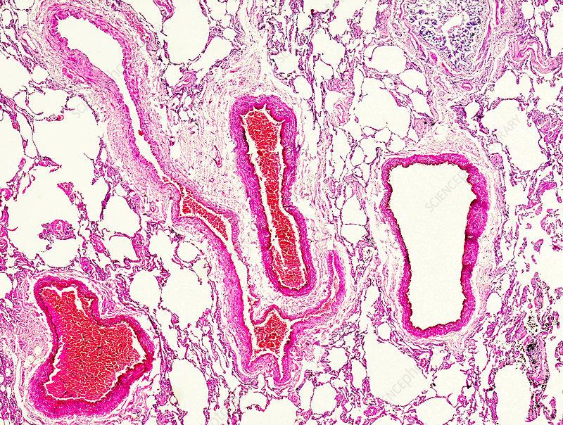 Acute alveoli emphysema, light micrograph