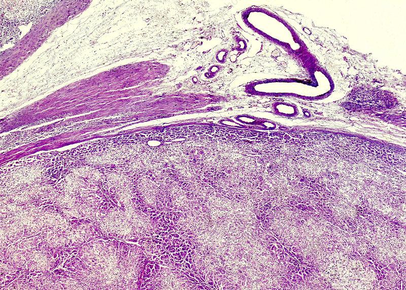 Pheochromocytoma, light micrograph